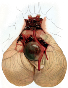 Aneurysm of the basilar artery, and the vertebral arteries. Source: Wikipedia